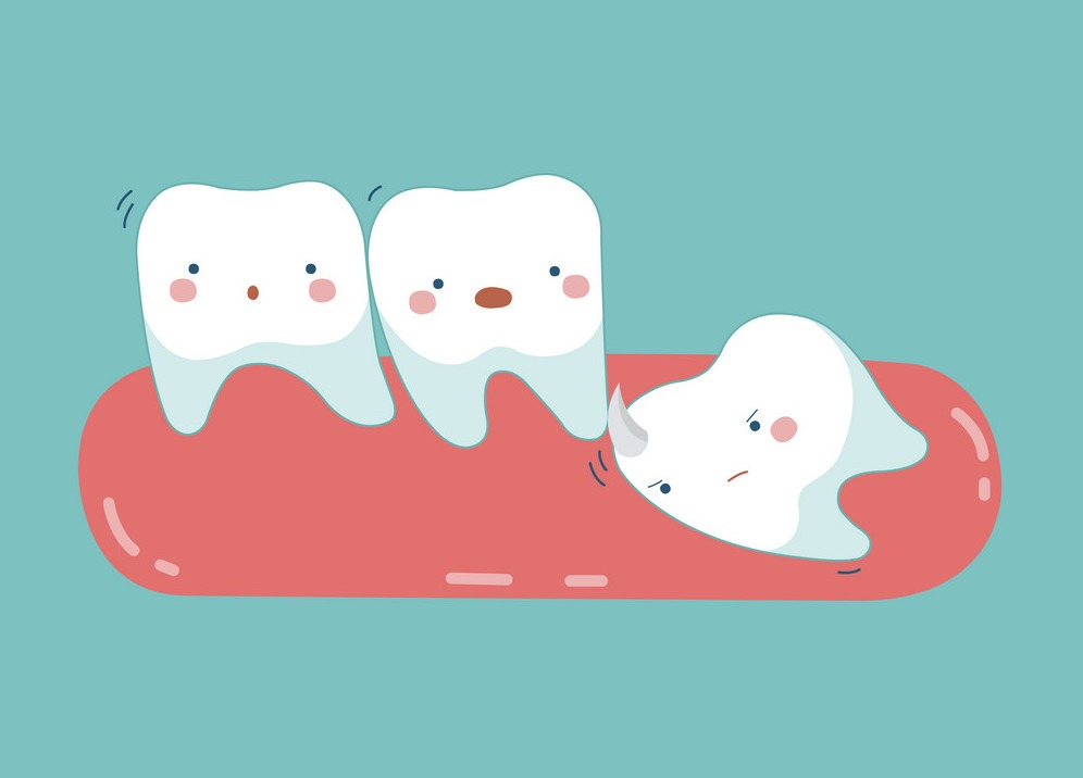 wisdom-tooth-push-other-tooth-teeth-and-tooth-vector-15501607-1604481997.jpg